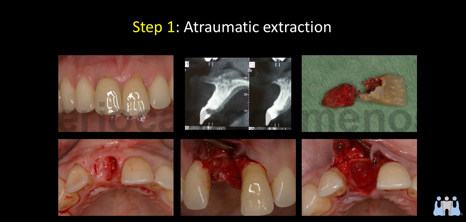 Early implant placement in the esthetic zone