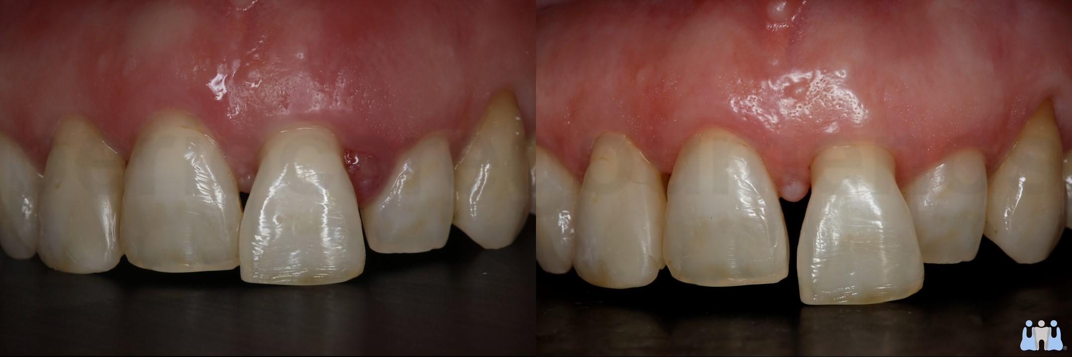 Contemporary periodontal treatment